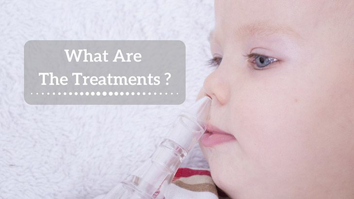 what-are-the-treatments