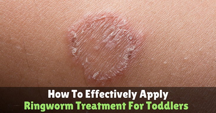 Ringworm-treatment-for-toddler