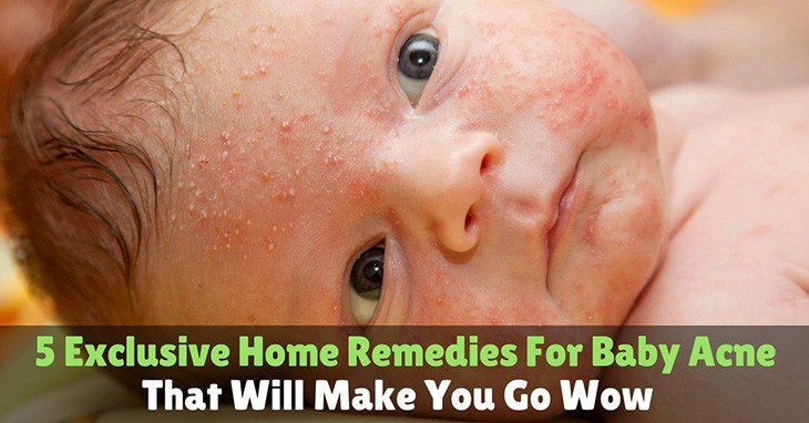 5 Exclusive Home Remedies For Baby Acne That Will Make You Go Wow